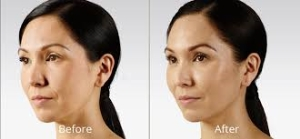 Voluma Before and After 2